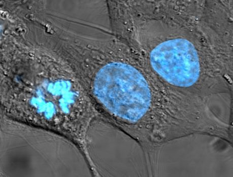 HeLa_cells_stained_with_Hoechst_33258